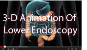 click here to view a 3-D animation of a lower endoscopy